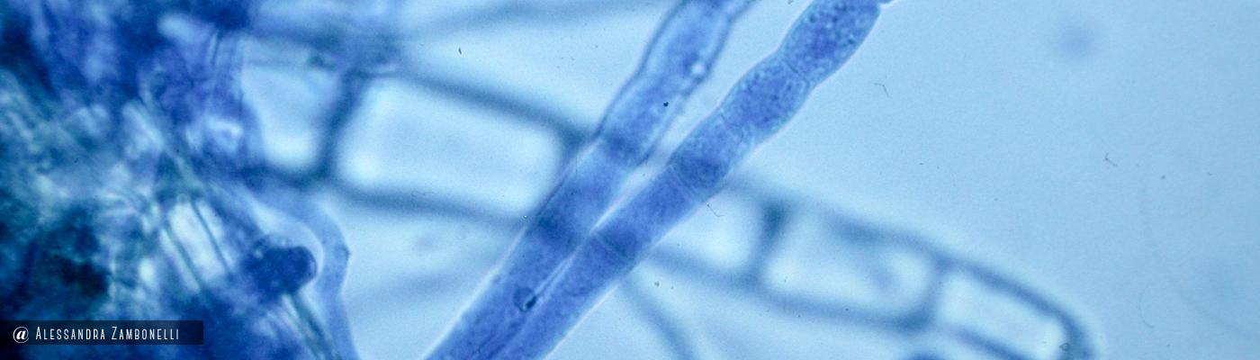 Oidio conidiofori e ife su Aquilegia vulgaris